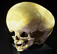 0130278 © Granger - Historical Picture ArchiveHYDROCEPHALIC SKULL.   Skull of a prehistoric person affected by hydrocephalus, from Seeburg, Germany, 3600-3300 B.C. Full credit: Schellhorn - ullstein bild / Granger, NYC -- All Rights Reserved.