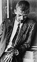 0078644 © Granger - Historical Picture ArchiveFREEDOM RIDER, 1961.   James Zwerg, a white Freedom Rider, photographed after being beaten by a mob at the Montgomery, Alabama, bus terminal, 20 May 1961.