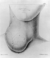 0173316 © Granger - Historical Picture ArchiveMEDICINE: GOITER, 1822.   Illustration of man with a large goiter on his neck. Lithograph, 1822.