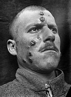 0130654 © Granger - Historical Picture ArchiveSKIN INFECTION, 1917.   A Middle Eastern man affected with the parasitic disease, Cutaneous Leishmaniasis, 1917, known locally as 'Jericho Buttons.'