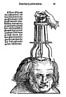 0104736 © Granger - Historical Picture ArchiveSKULL OPERATION, 1517.   The extraction of a bone fragment from the brain resulting from a skull fracture. Woodcut from the first edition of Hans von Gersdorff's 'Feldtbuch der Wundartzney' (Guide to Surgery), Strassburg, 1517.