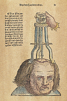 0104737 © Granger - Historical Picture ArchiveSKULL OPERATION, 1517.   The extraction of a bone fragment from the brain resulting from a skull fracture. Woodcut from the first edition of Hans von Gersdorff's 'Feldtbuch der Wundartzney' (Guide to Surgery), Strassburg, 1517.