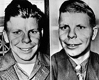 0170407 © Granger - Historical Picture ArchivePLASTIC SURGERY, 1947.   David Ruge, age 16, of Chicago, Illinois, called the 'ape boy' because of his appearance (left), photographed (right) after receiving plastic surgery, 8 February 1947, from Dr. Ferris Smith of Grand Rapids, Mighigan, who performed the operation for free after learning that Ruge had attempted extortion to finance such a procedure.