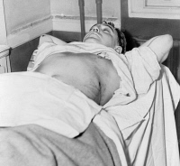 0526969 © Granger - Historical Picture ArchiveDUTCH SCHULTZ (1902-1935).   Born Arthur Flegenheimer. American gangster. Photographed in the hospital in Newark, New Jersey, after being shot, 1935.