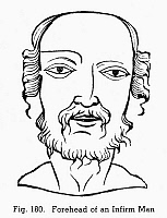 0097068 © Granger - Historical Picture ArchivePHYSIOGNOMY, c1658.   Forehead of an infirm man. Woodcut, 1658, from Hieronymous Cardanus' 'Metoscopia' (Paris).