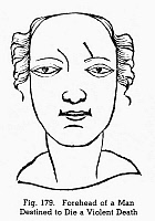 0097090 © Granger - Historical Picture ArchivePHYSIOGNOMY, 1658.   Forehead of a man destined to die a violent death. Woodcut, 1658, from Hieronymous Cardanus' 'Metoposcopia.'