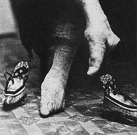 0017886 © Granger - Historical Picture ArchiveCHINA: LILY FOOT, c1900.   The deliberately crippled feet of an upper class Chinese woman.