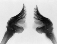0114889 © Granger - Historical Picture ArchiveCHINA: LILY FOOT.   An x-ray of a 'lily footed' woman of China, c1890-1923.